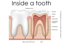 Inside a tooth